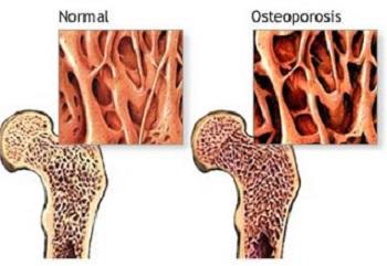 Osteosporósis y vitamina C
