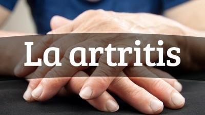 Tratamiento total de artritis