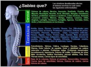 Efectos de vértebras desalineadas