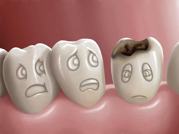 Resultado de imagen de caries dental