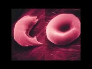 Origen emocional de la anemia