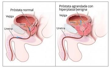 Origen emocional prostatitis