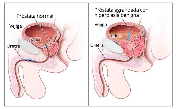prostatitis débil por chorro de esperma