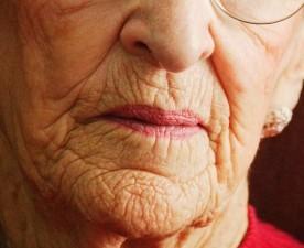 Arrugas origen receta cuidados