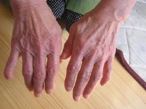 Como aparece la artrosis