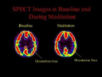 Cambio Cerebral en Oración y Meditación