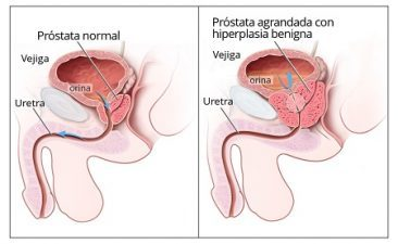 La Prostatitis Síntomas Bloqueo Emocional Hábitos de Vida Suplemento Natural